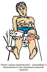 болит справа колено